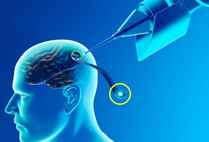 Neuralink Çip Bağlantısı